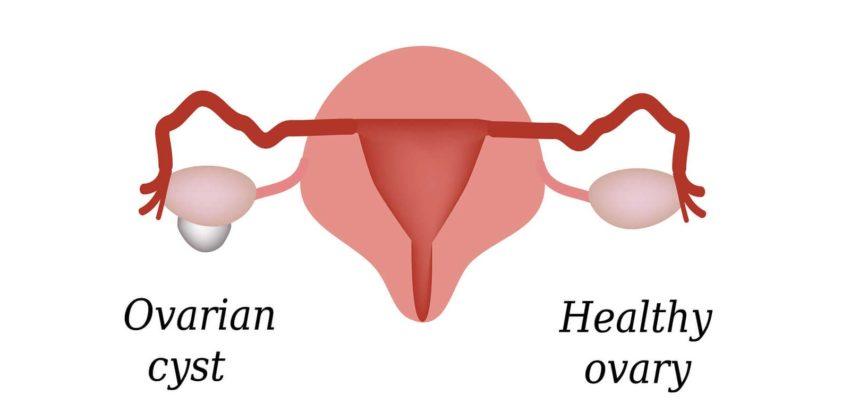 Testosterone Deficiency in Women